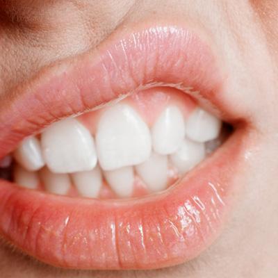 Britische Sparfüchse Zähne Selber Ziehen Spart Geld Zähne Augen